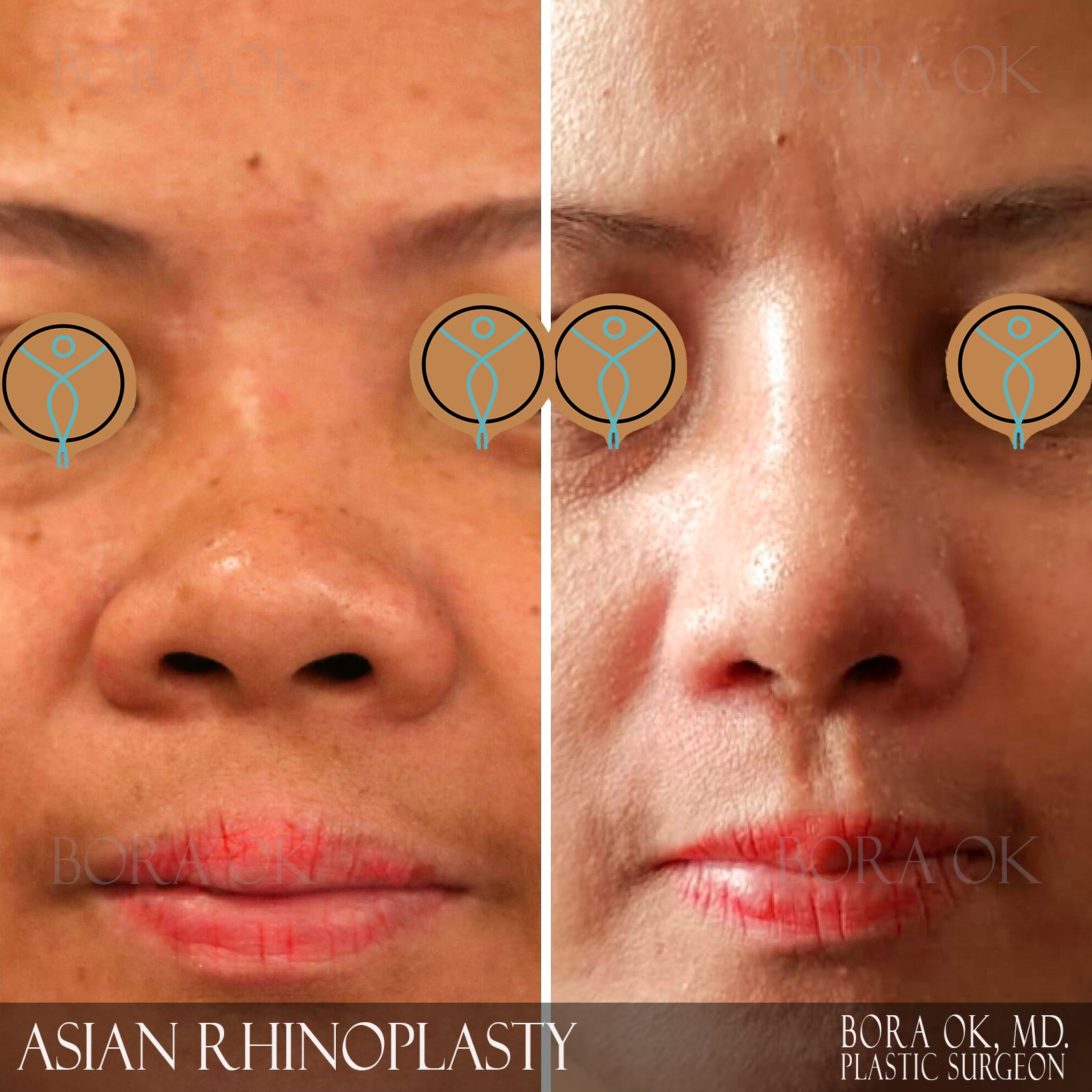 Asian Ethnic Rhinoplasty (Nose Job) Before After