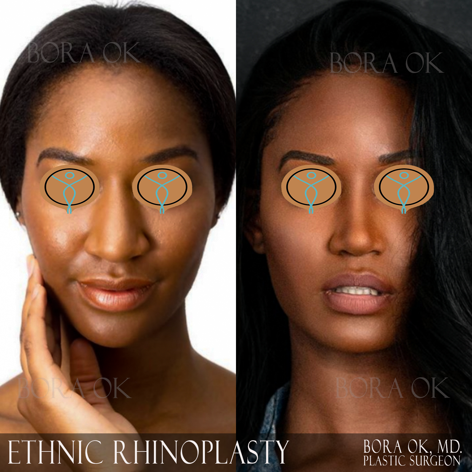 African-American Ethnic  Rhinoplasty (Nose Job) Before After