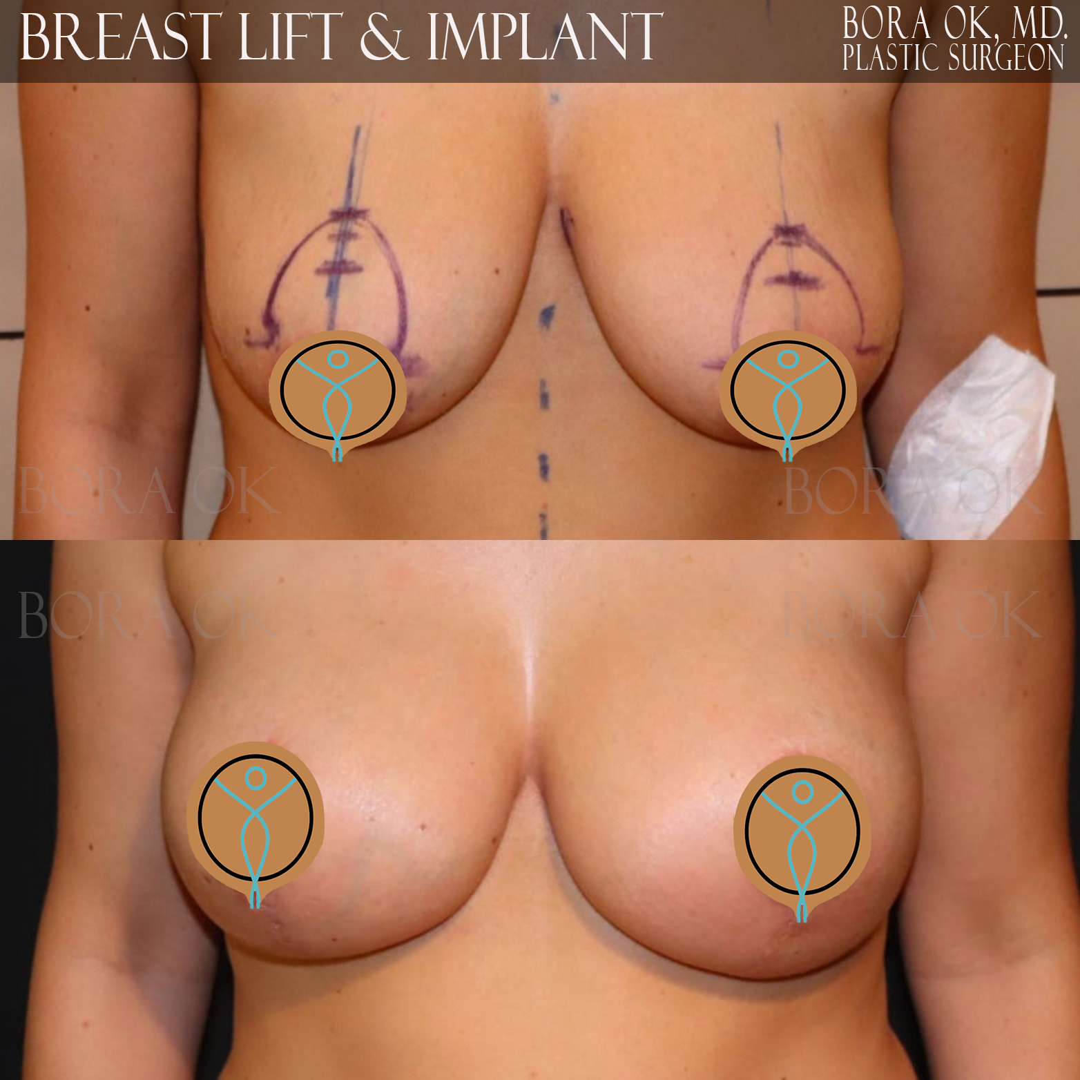 Breast Lift And Augmentation 1