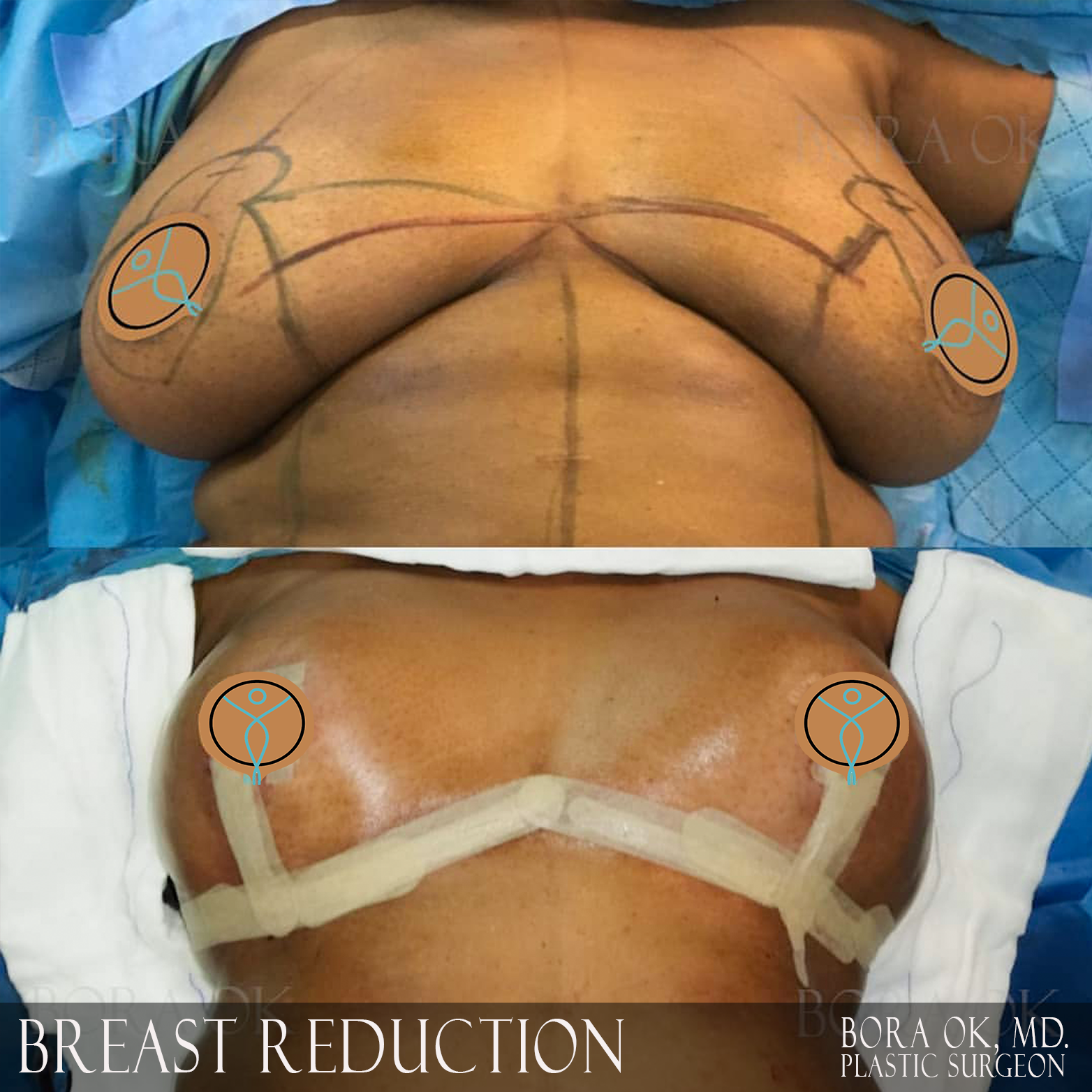 Breast Reduction 5