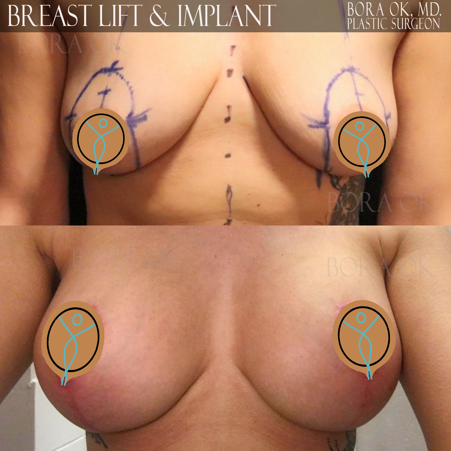 Breast Lift And Augmentation 4