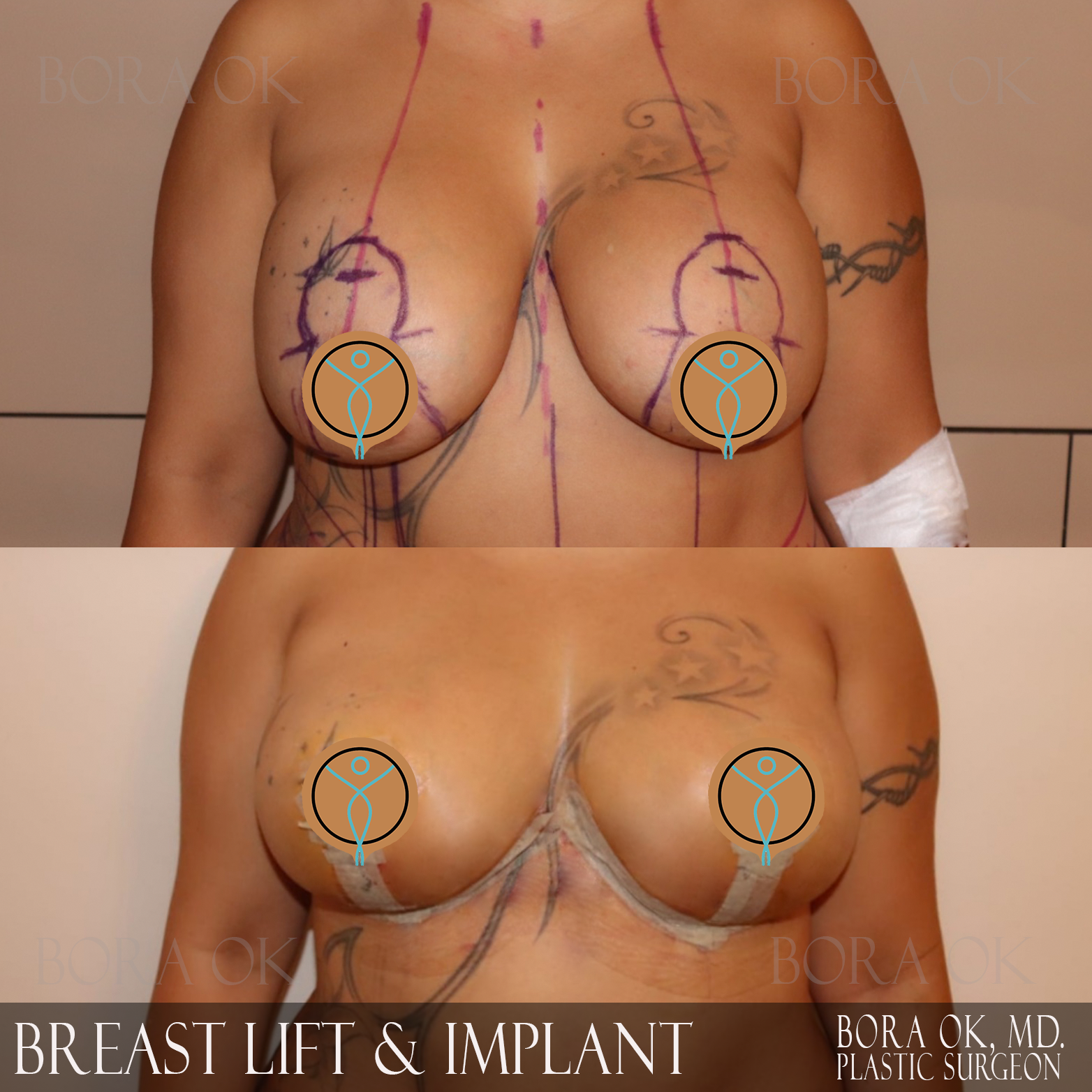 Breast Lift And Augmentation 5