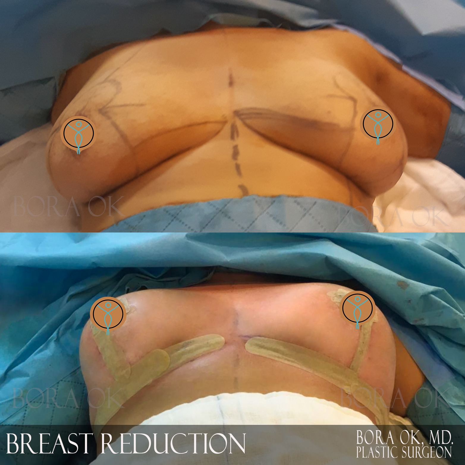 Breast Reduction 7