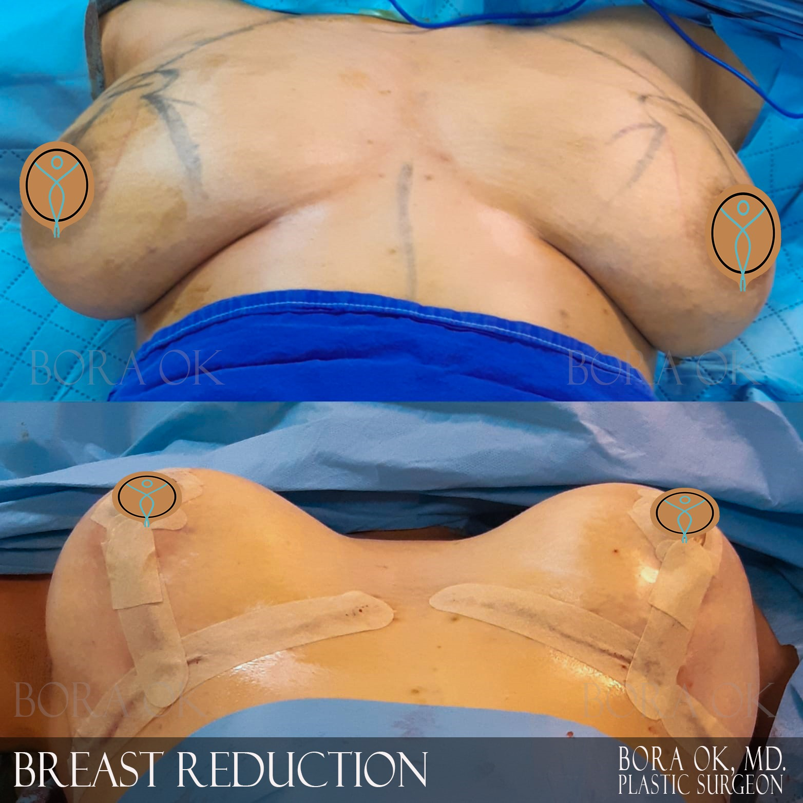 Breast Reduction 8