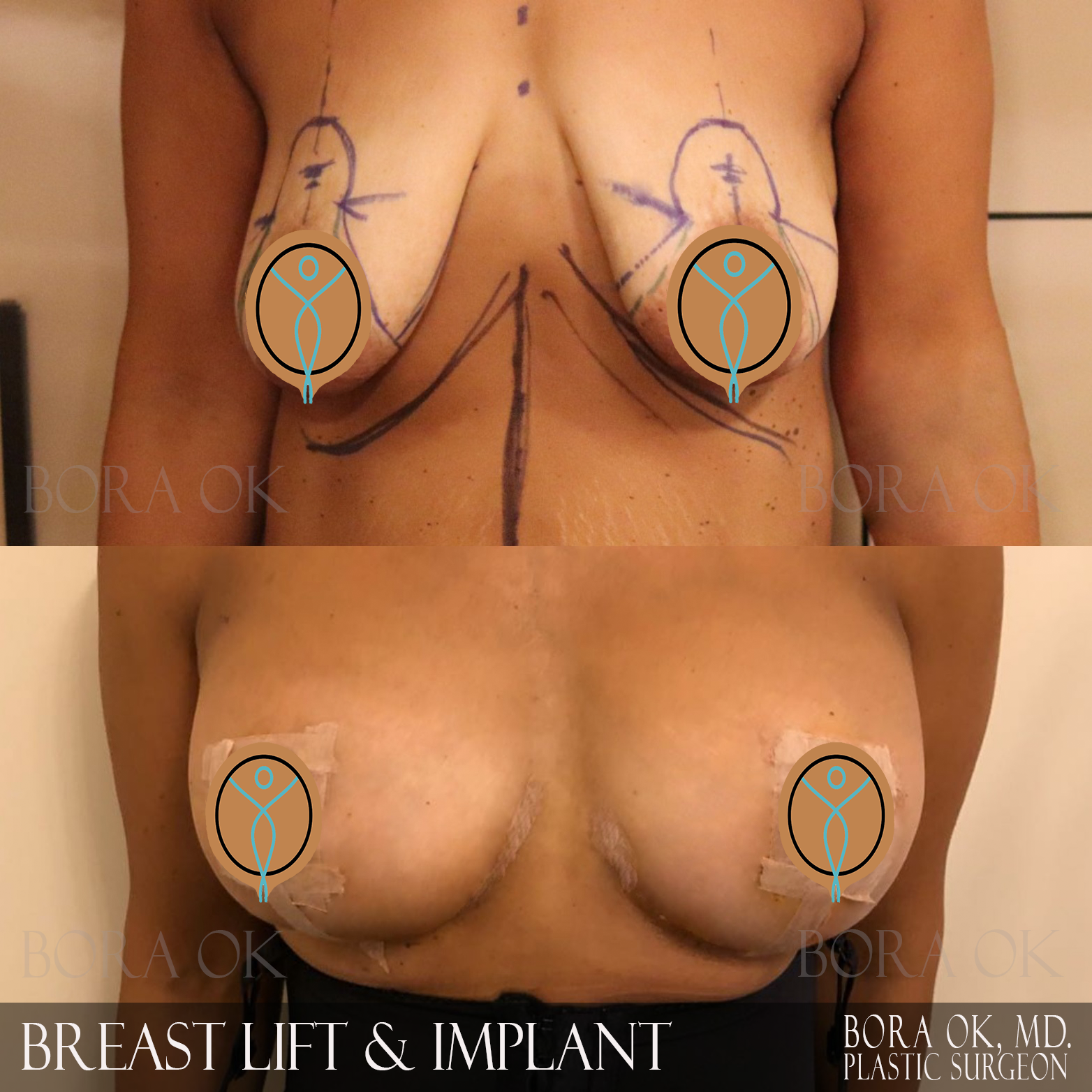 Breast Lift And Augmentation 6
