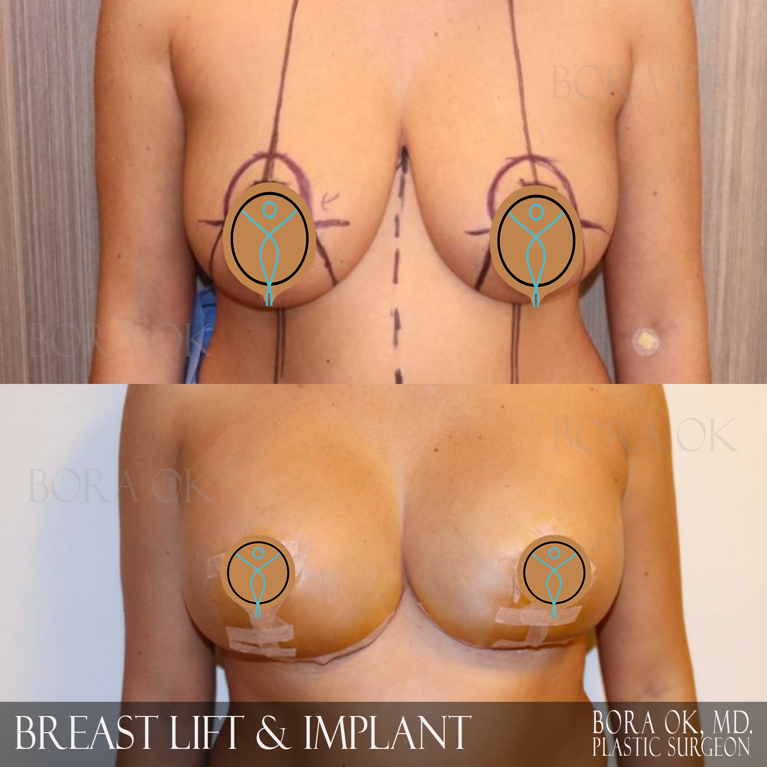 Breast Lift And Augmentation 8