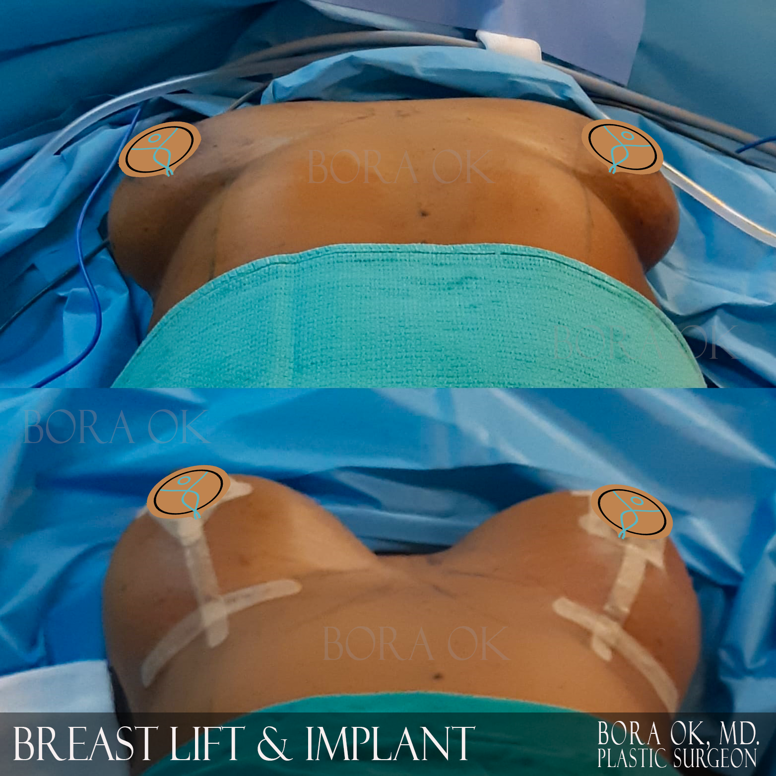 Breast Lift And Augmentation 9