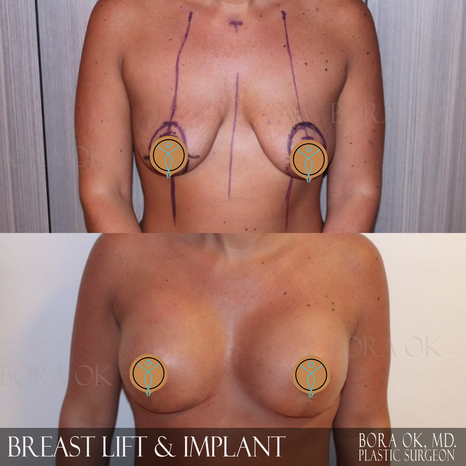 Breast Lift And Augmentation 10