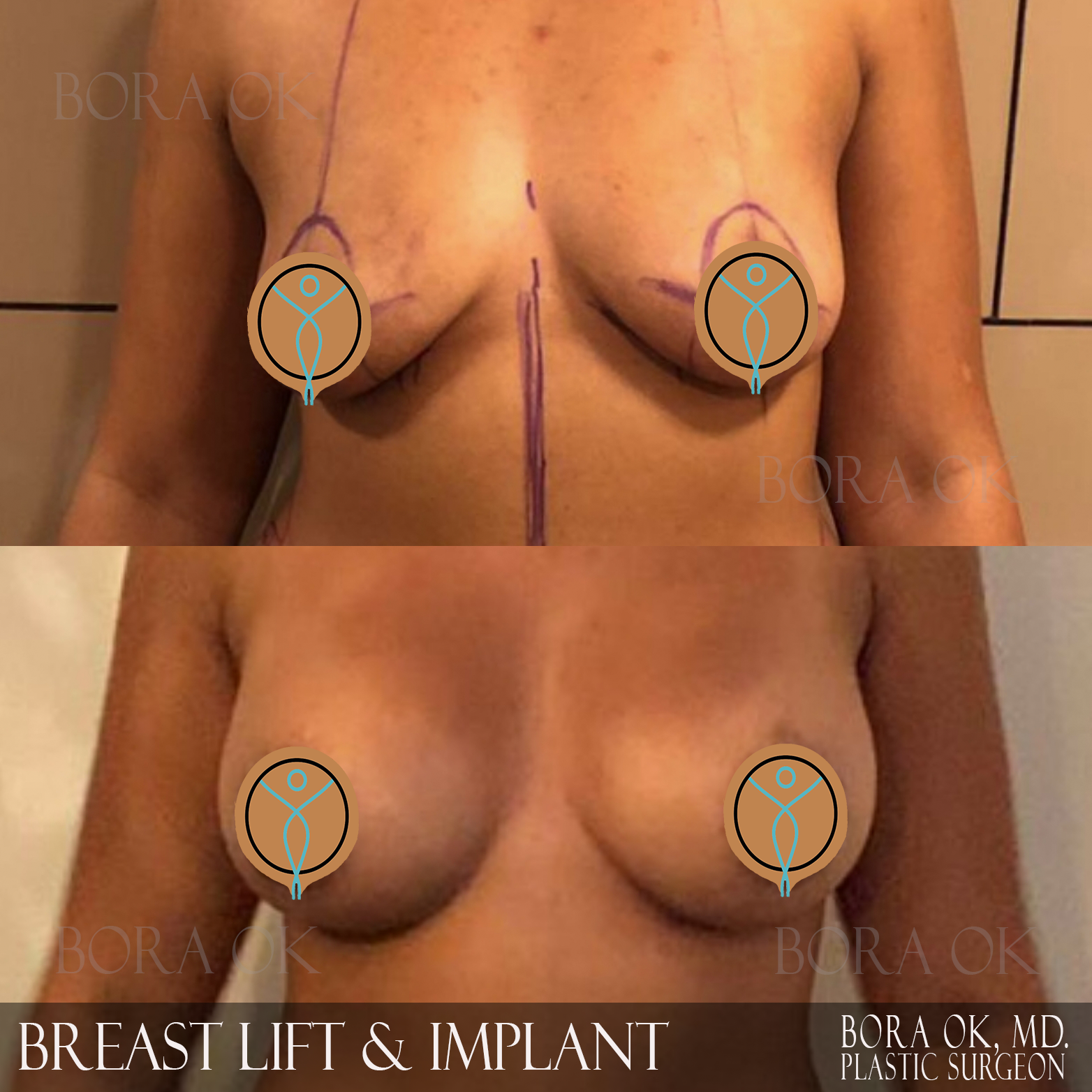 Breast Lift And Augmentation 11