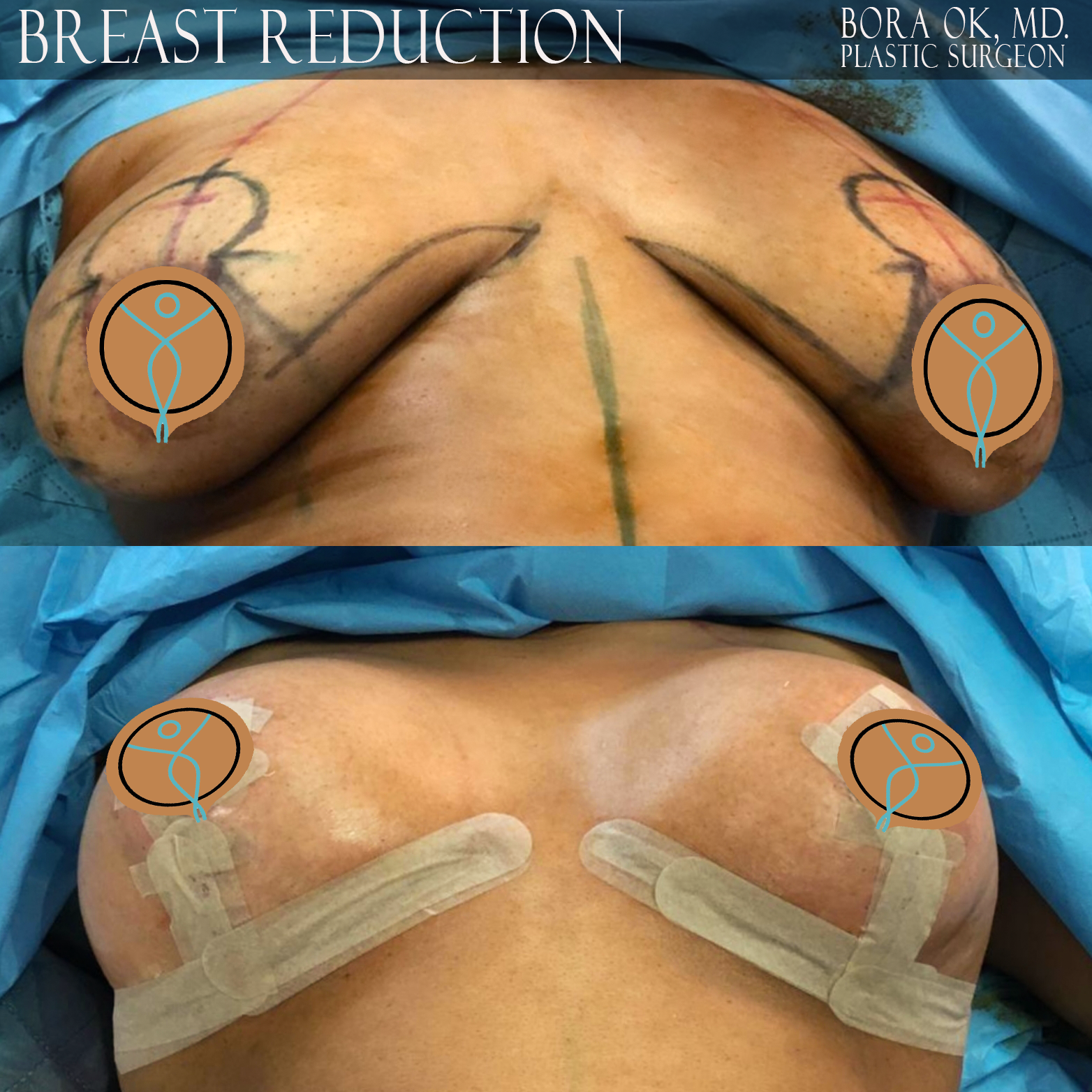 Breast Reduction 6