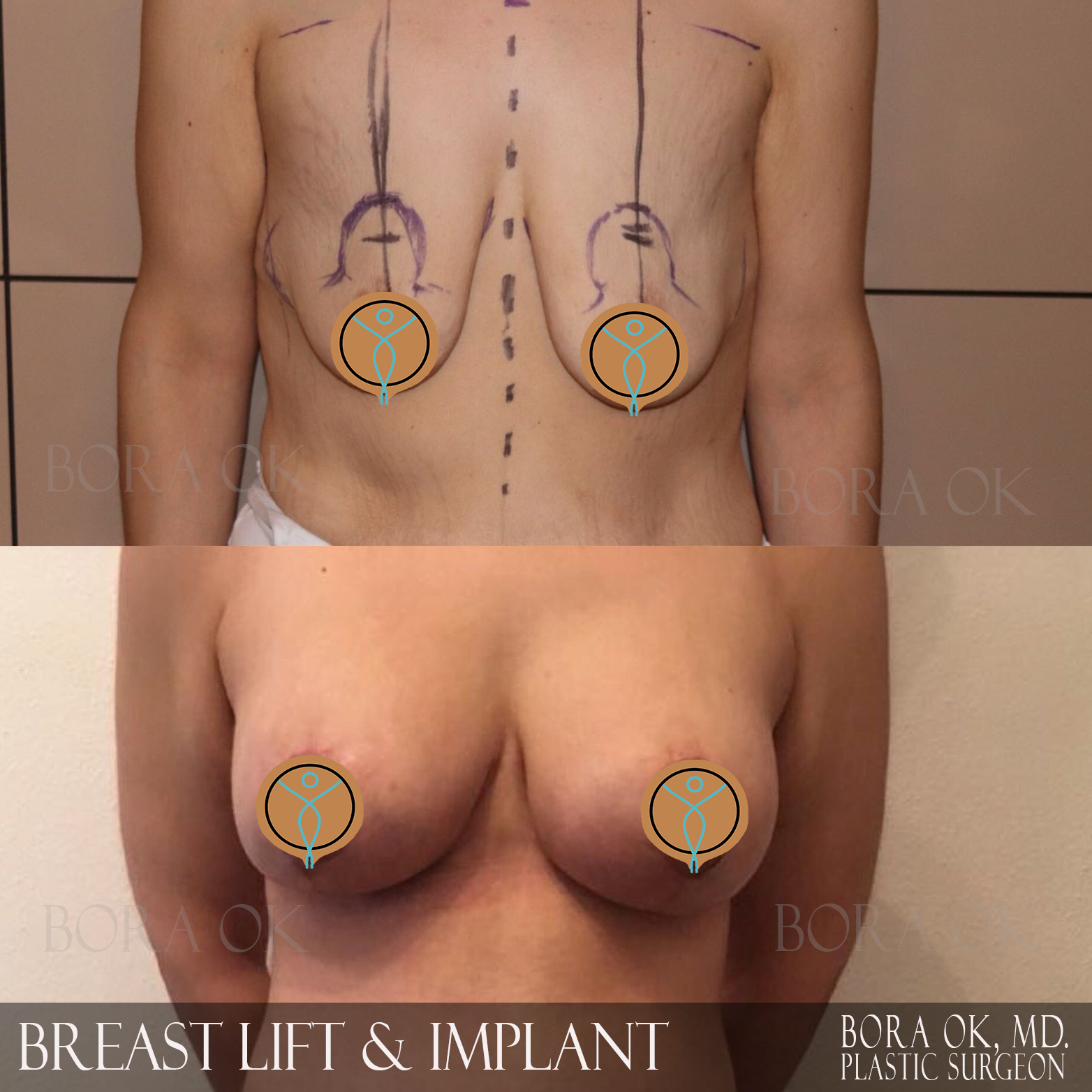 Breast Lift And Augmentation 3